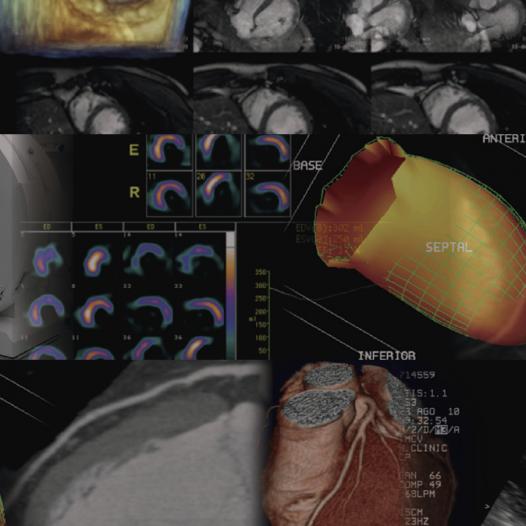 Máster Universitario de Diagnóstico por la imagen en cardiología